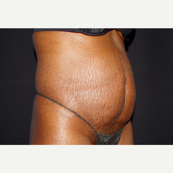 35-44 year old woman treated with Liposuction and Abdominoplasty before 3644705