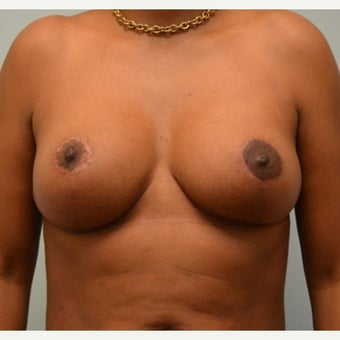 Breast Implant Removal combined with a breast lift in 43 year old patient after 1975742