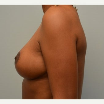 Breast Implant Removal combined with a breast lift in 43 year old patient 1975742