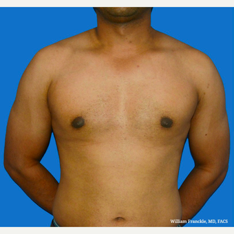 Male Breast Reduction after 3569272