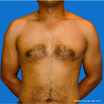 Male Breast Reduction before 3569272