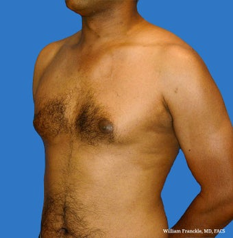 Male Breast Reduction 3569272