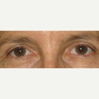 55-64 year old woman treated with Eyelid Surgery after 1598208
