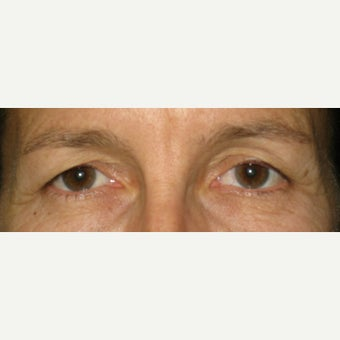 55-64 year old woman treated with Eyelid Surgery before 1598208