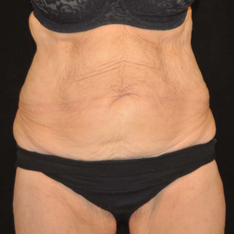 Velashape after 1494940