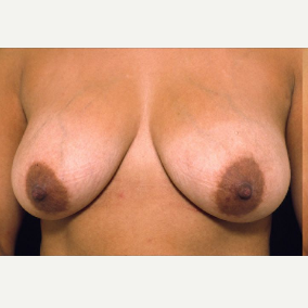 46 year old woman treated with Breast Lift with Implants before 3094886
