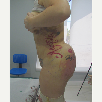 25-34 year old woman treated with Brazilian Butt Lift after 3663876