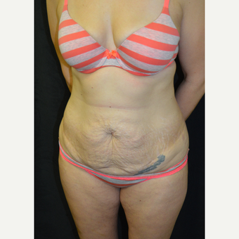 35-44 year old woman treated with Tummy Tuck before 3181684