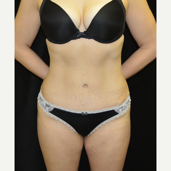 35-44 year old woman treated with Tummy Tuck after 3181684
