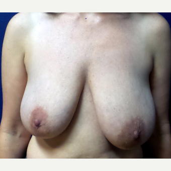35-44 year old woman treated with Breast Reduction before 3195710