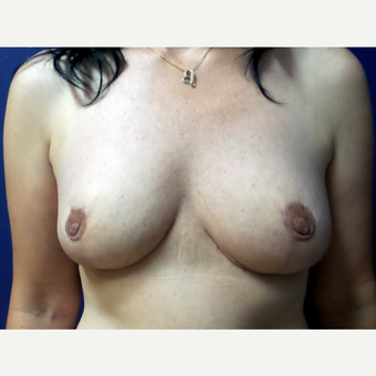 35-44 year old woman treated with Breast Reduction after 3195710