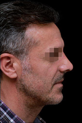35-44 year old man treated with Rhinoplasty after 3199866