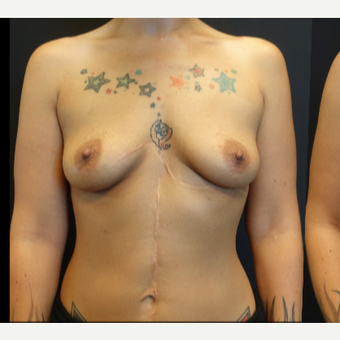 25-34 year old woman treated with Breast Augmentation before 3787579