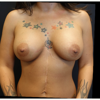 25-34 year old woman treated with Breast Augmentation after 3787579