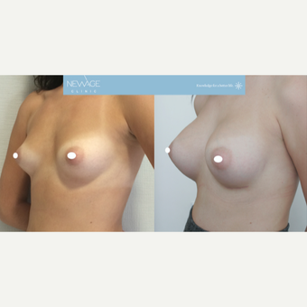 25-34 year old woman treated with Breast Augmentation before 3107634