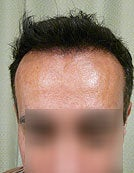 FUE – SFET Using Head and Nape Hair transplant to hairline and frontal scalp after 195666