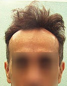 FUE – SFET Using Head and Nape Hair transplant to hairline and frontal scalp before 195666