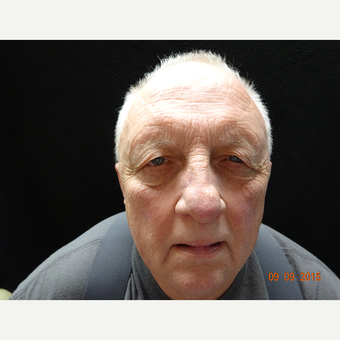 65-74 year old man treated with Eyelid Surgery before 3823427