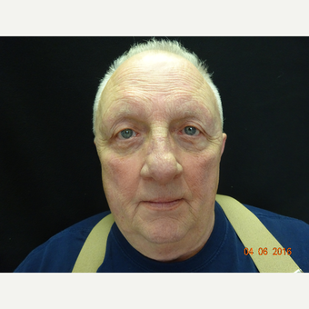 65-74 year old man treated with Eyelid Surgery after 3823427
