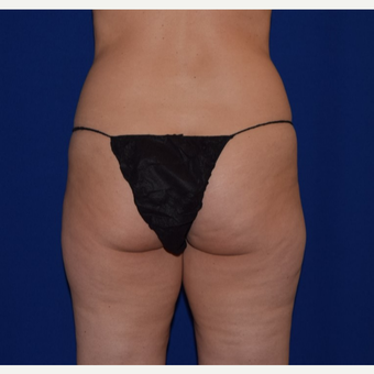 35-44 year old woman treated with Liposuction of Love Handles & Outer Thighs before 3105089