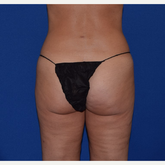 35-44 year old woman treated with Liposuction of Love Handles & Outer Thighs after 3105089