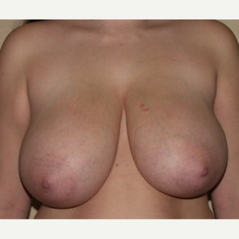24 year old woman treated with Breast Reduction