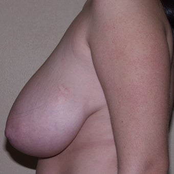 24 year old woman treated with Breast Reduction 1994091