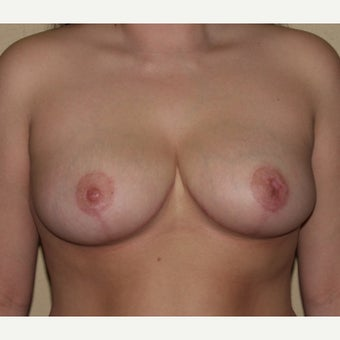 24 year old woman treated with Breast Reduction after 1994091