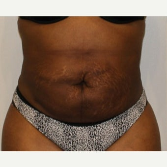 35-44 year old woman treated with SmartLipo Triplex