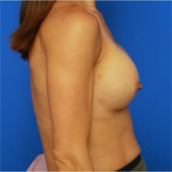 41-year old woman treated with Breast Implants after 3643808