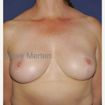 35-44 year old woman treated with Breast Reduction after 3472431