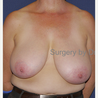 35-44 year old woman treated with Breast Reduction before 3472431