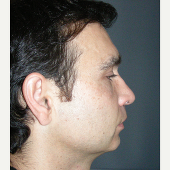 35-44 year old man treated with Rhinoplasty after 3687008