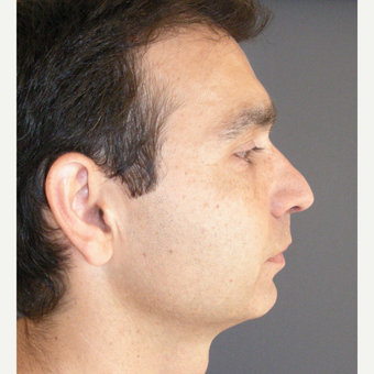 35-44 year old man treated with Rhinoplasty before 3687008