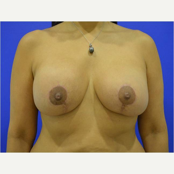 45-54 year old woman treated with Breast Lift with Implants after 3744707