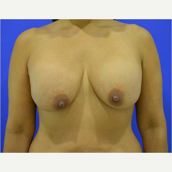 45-54 year old woman treated with Breast Lift with Implants before 3744707