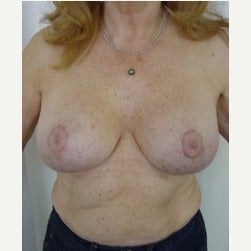 65-74 year old woman treated with Breast Lift with Implants after 2045518