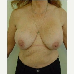 65-74 year old woman treated with Breast Lift with Implants before 2045518