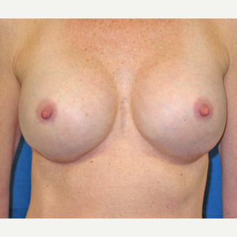 Saline implants exchanged for larger silicone implants and reduction of gap between pectoral pockets after 3205620