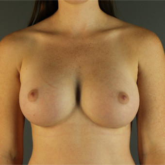 18-24 year old woman treated with Breast Augmentation after 3670221