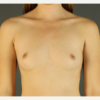 18-24 year old woman treated with Breast Augmentation before 3670221