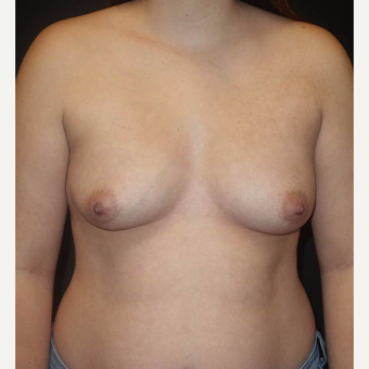 18-24 year old woman treated with Breast Augmentation before 3458257