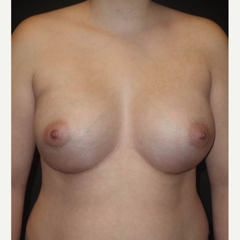 18-24 year old woman treated with Breast Augmentation after 3458257