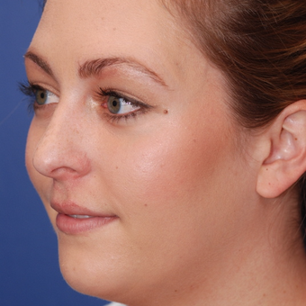 18-24 year old woman treated with Rhinoplasty before 3624113