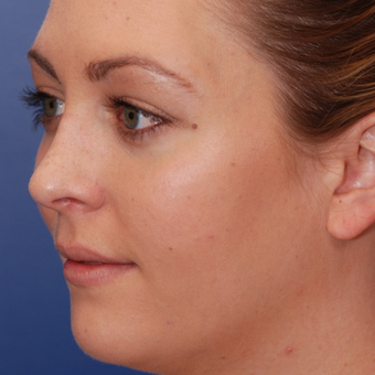 18-24 year old woman treated with Rhinoplasty after 3624113