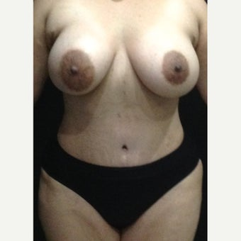 35-44 year old treated with Tummy Tuck after 1587129