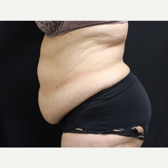 55-64 year old woman treated with Tummy Tuck before 3099420
