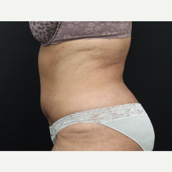 55-64 year old woman treated with Tummy Tuck after 3099420