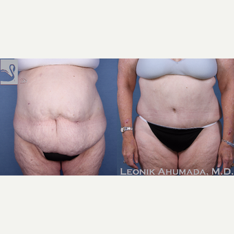 55-64 year old woman treated with Tummy Tuck before 3093435