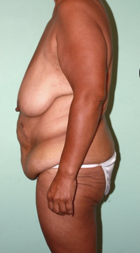 Lower Body Lift: Breast Lift, Crecent Lift, Extended Abdominoplasty